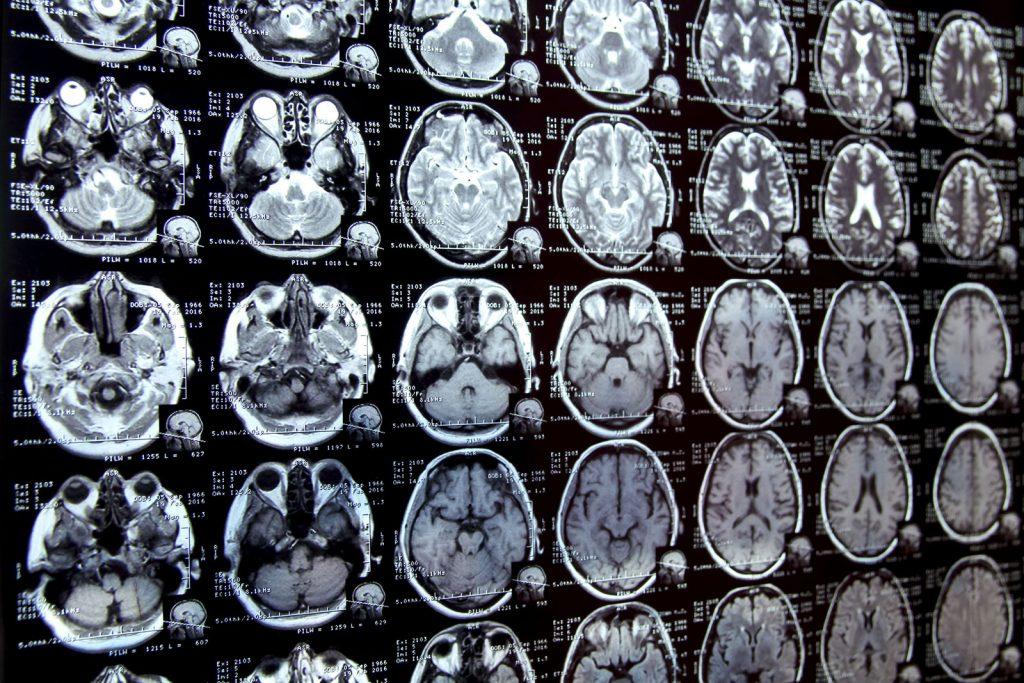 Sitilop Neurology